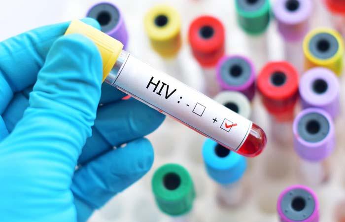 Siapa yang Lebih Berpotensi Menularkan HIV ?